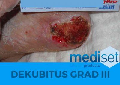Dekubitus Grad 3 III Druckgeschwür